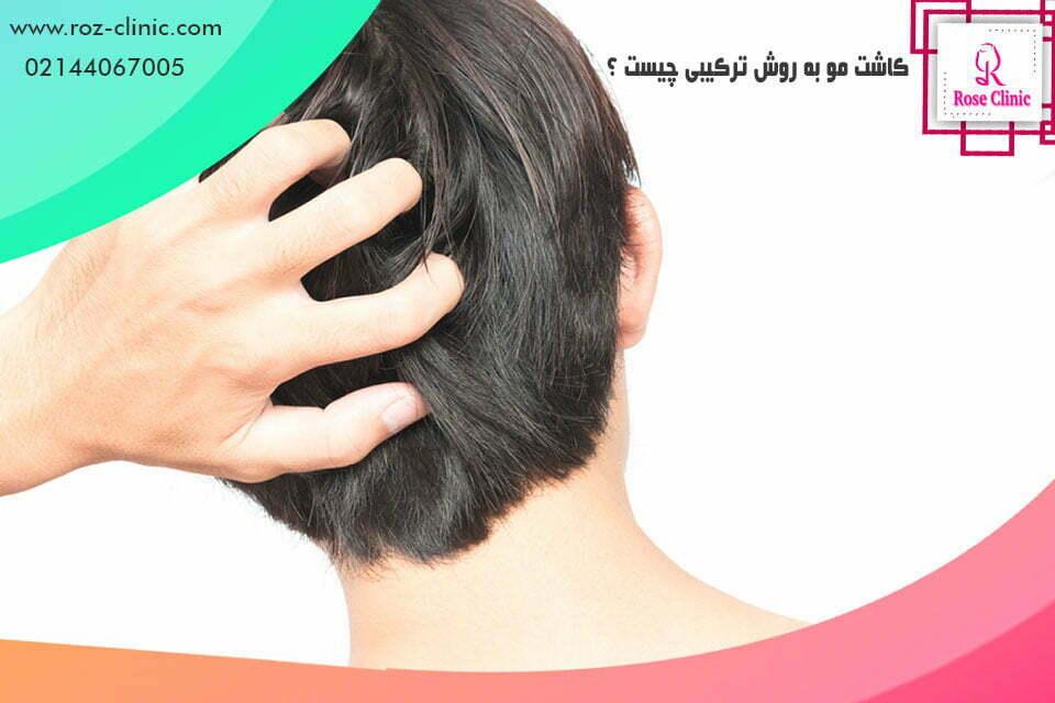 کاشت مو به روش ترکیبی چیست