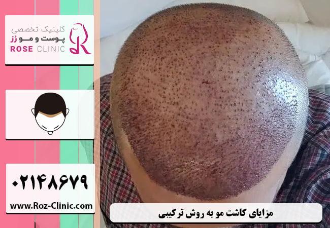 مزایای کاشت مو به روش ترکیبی