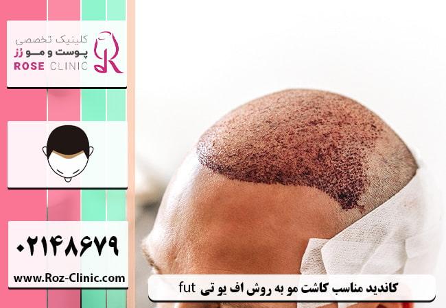 همه چیز درمورد کاشت مو به روش FUT