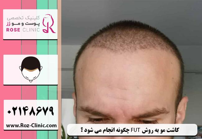 کاشت مو به روش FUT چگونه انجام می شود