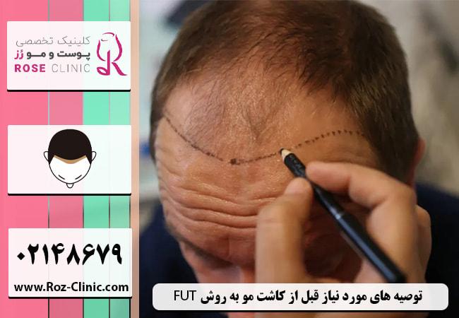 توصیه های مورد نیاز قبل از کاشت مو به روش FUT