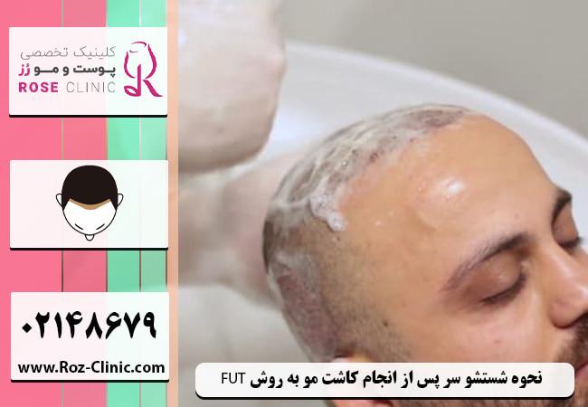 نحوه شستشو سر پس از انجام عمل کاشت مو به روش FUT