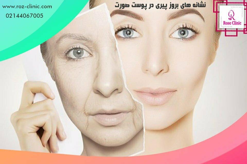 نشانه های بروز پیری در پوست صورت