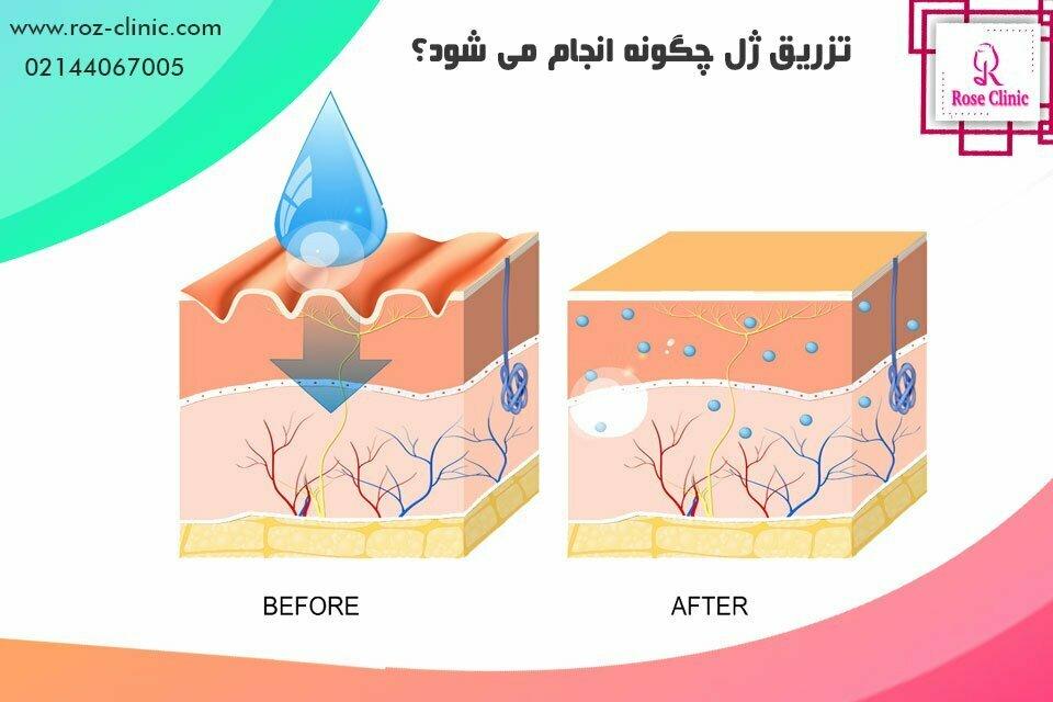 تزریق ژل چگونه انجام می شود