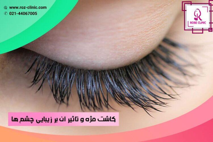 کاشت مژه و تاثیر آن بر زیبایی چشم ها