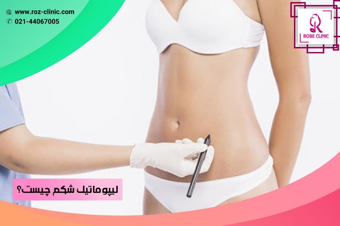 لیپوماتیک شکم چیست ؟