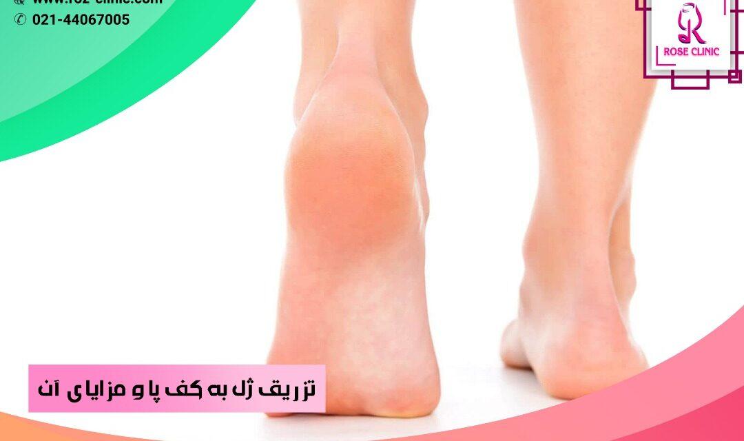 تزریق ژل به کف پا و مزایای آن