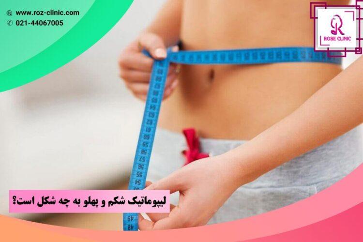لیپوماتیک شکم و پهلو به چه شکل است؟