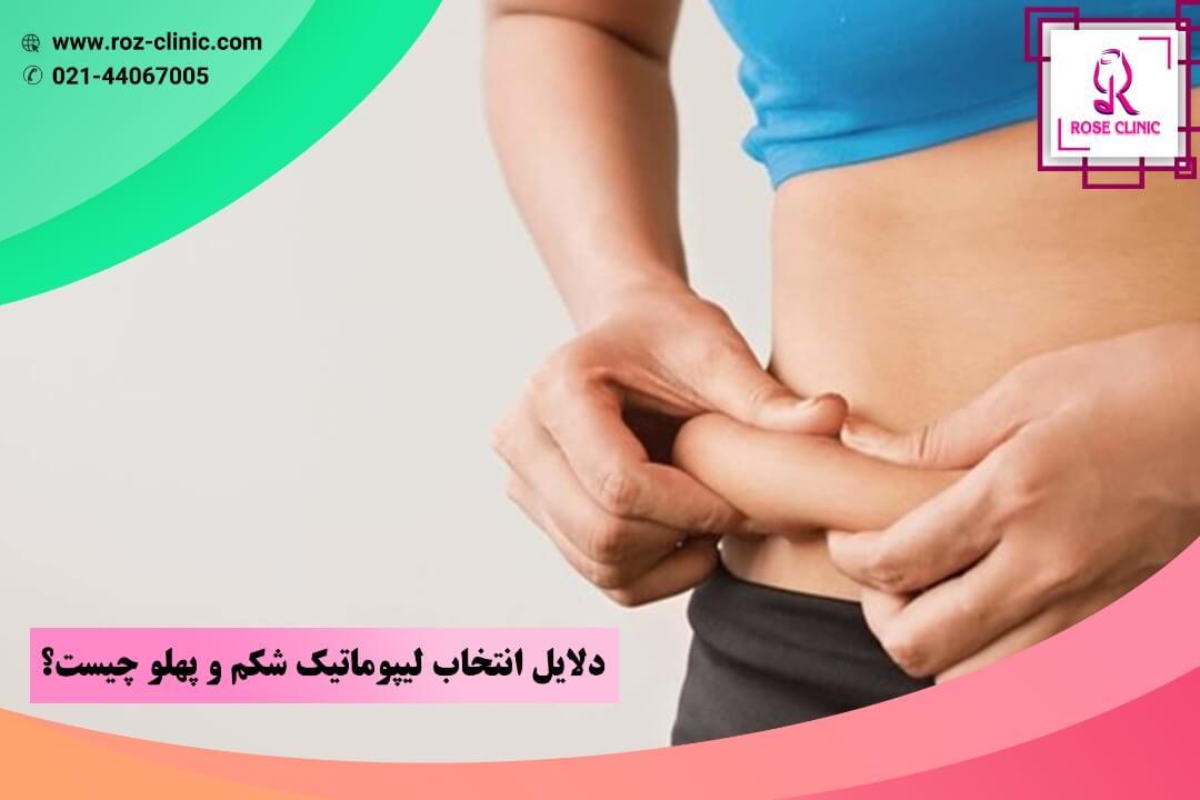 دلایل انتخاب لیپوماتیک شکم و پهلو چیست؟