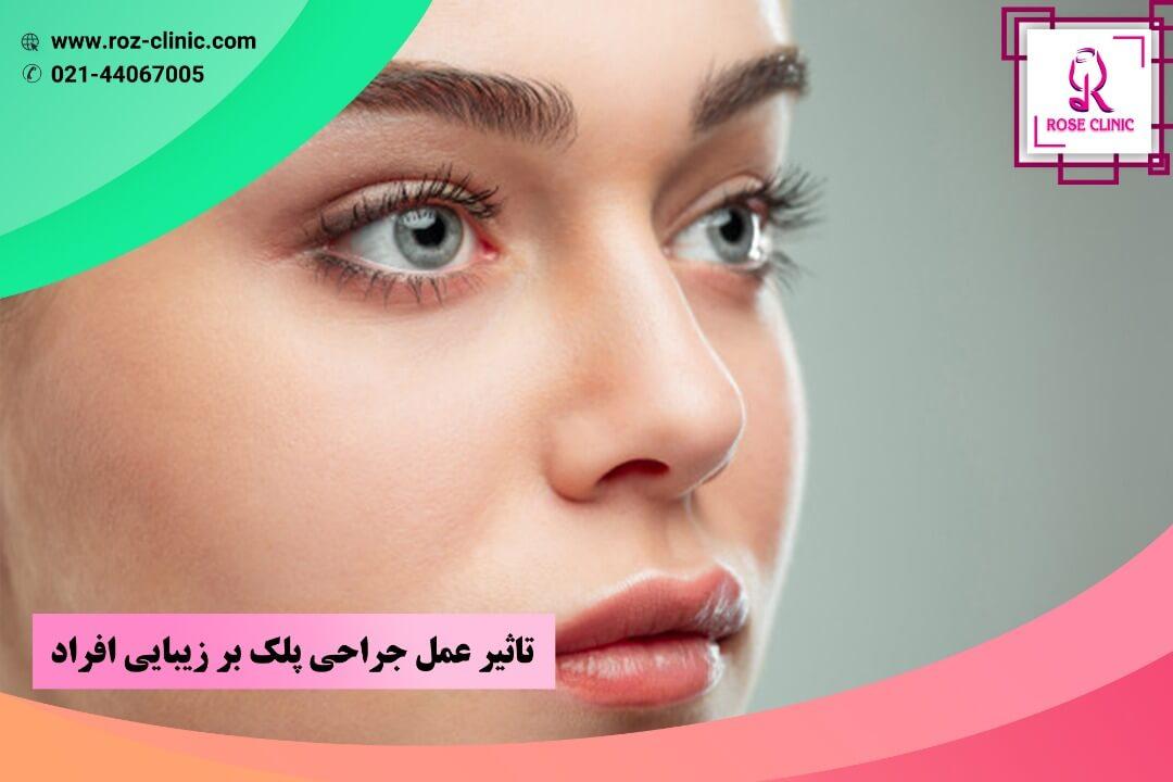 تأثیر عمل جراحی پلک بر زیبایی افراد