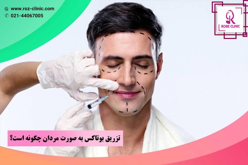 تزریق بوتاکس به صورت مردان چگونه است؟