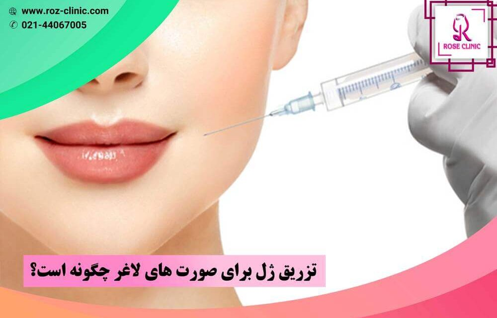 تزریق ژل برای صورت های لاغر چگونه است؟