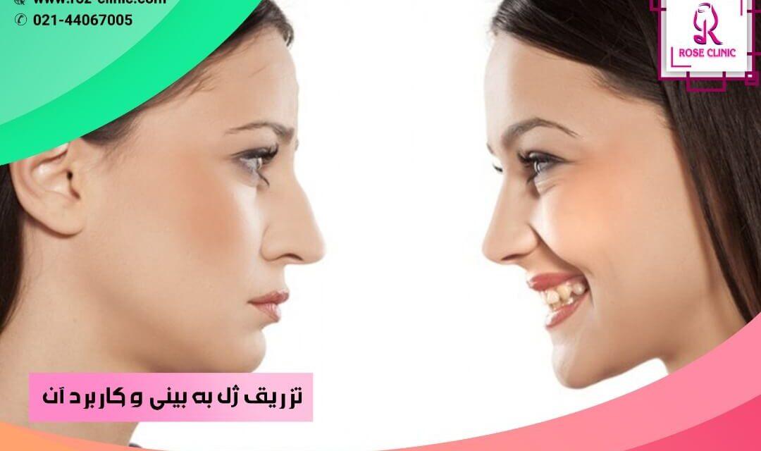 تزریق ژل به بینی و کاربرد آن