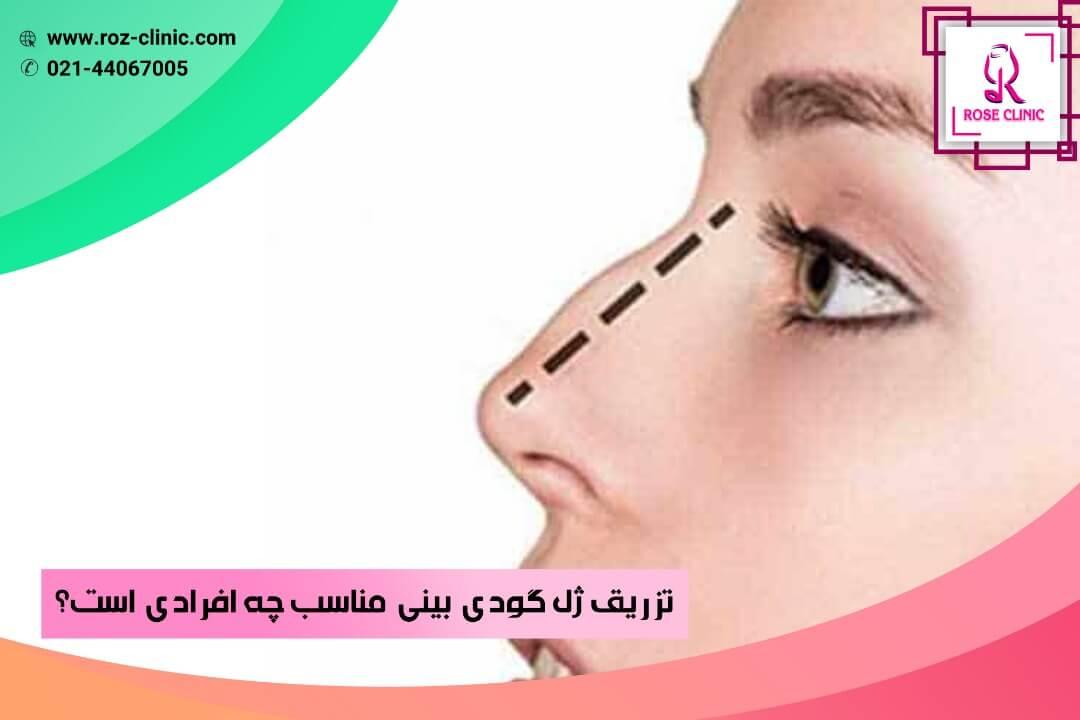 تزریق ژل گودی بینی مناسب چه افرادی است؟