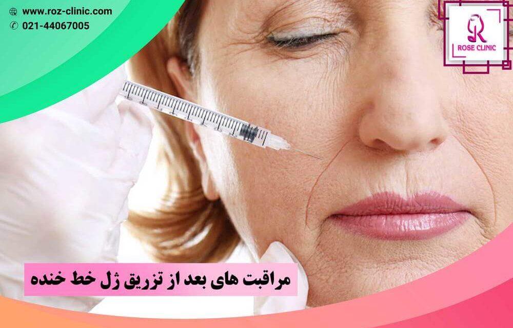 مراقبت های بعد از تزریق ژل خط خنده