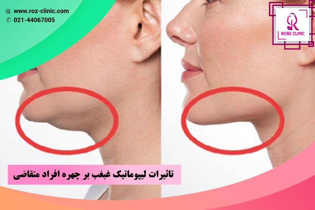 تاثیرات لیپوماتیک غبغب بر چهره افراد متقاضی
