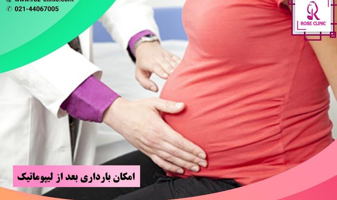 امکان بارداری بعد از لیپوماتیک