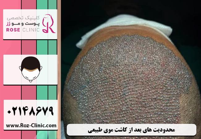 محدودیت های بعد از کاشت موی طبیعی