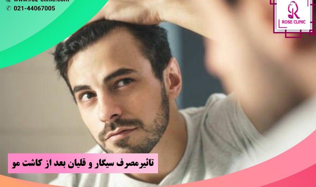 تاثیر مصرف سیگار و قلیان بعد از کاشت مو