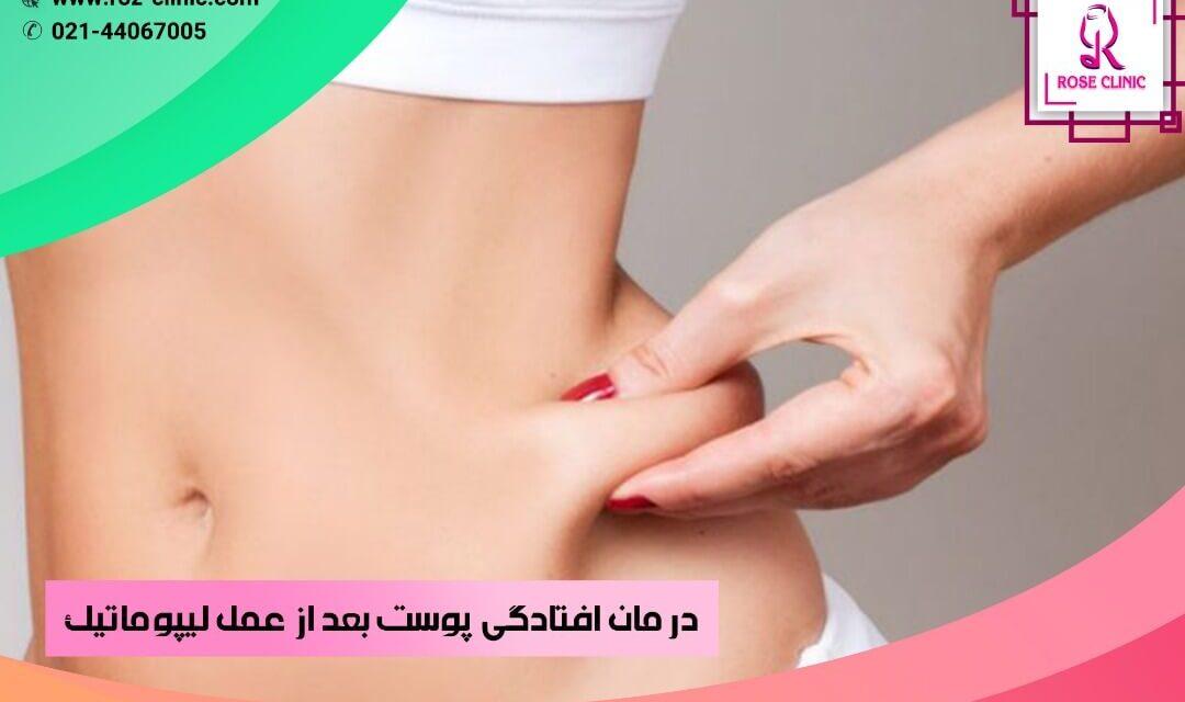 درمان افتادگی پوست بعد از عمل لیپوماتیک