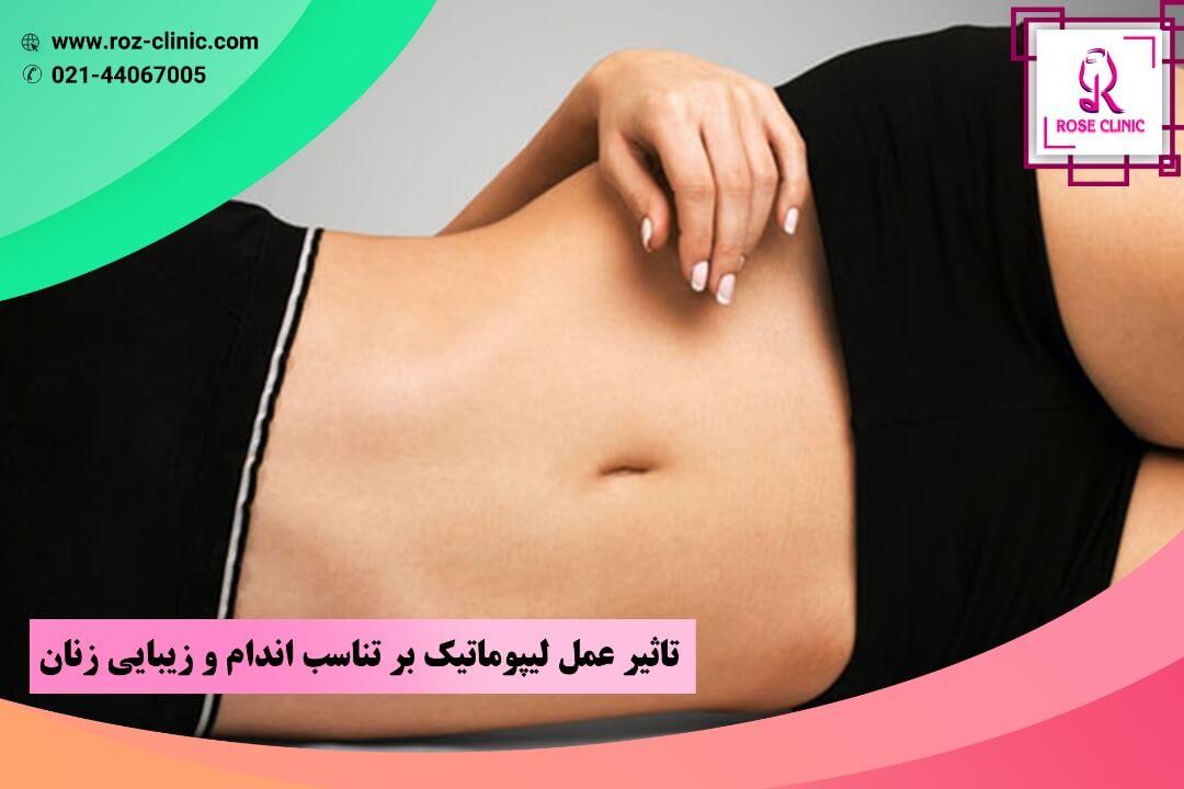 تاثیر عمل لیپوماتیک بر تناسب اندام و زیبایی زنان