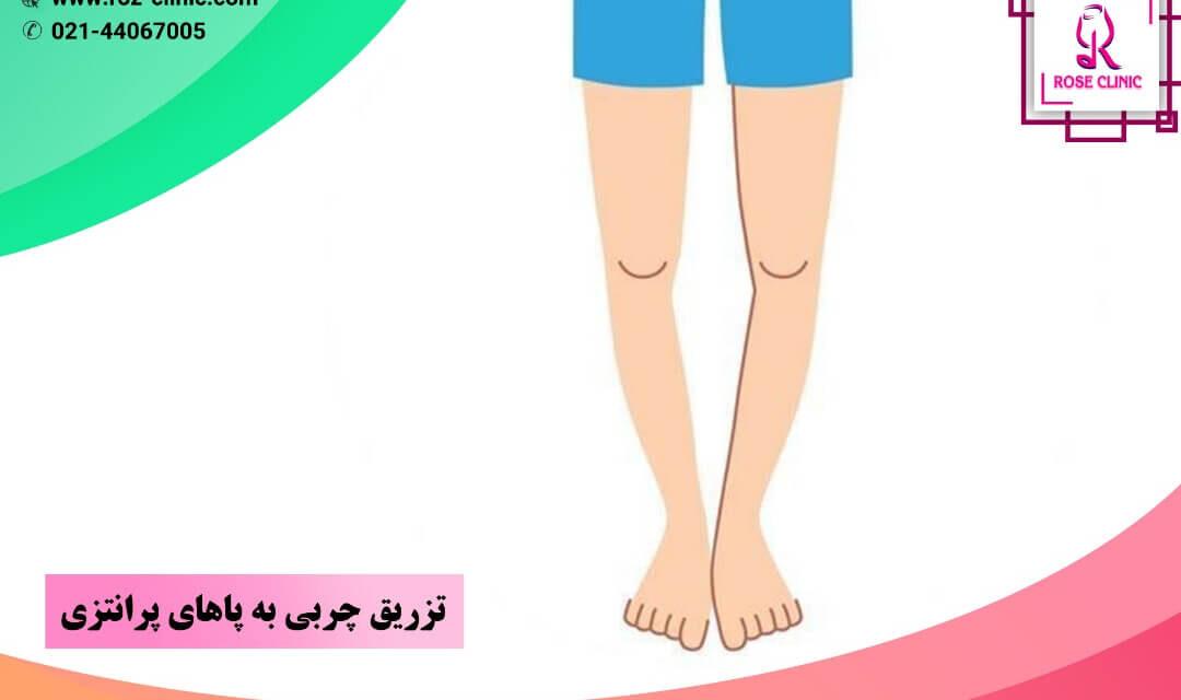تزریق چربی به پاهای پرانتزی