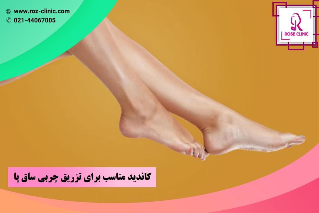 کاندید مناسب برای تزریق چربی ساق پا