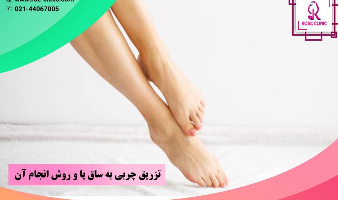 تزریق چربی به ساق پا و روش انجام آن