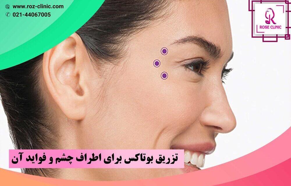 تزریق بوتاکس برای اطراف چشم و فواید آن