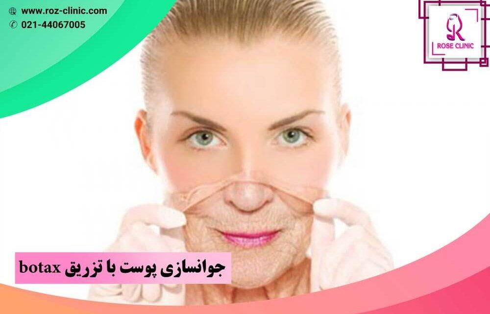 جوانسازی پوست با تزریق botax