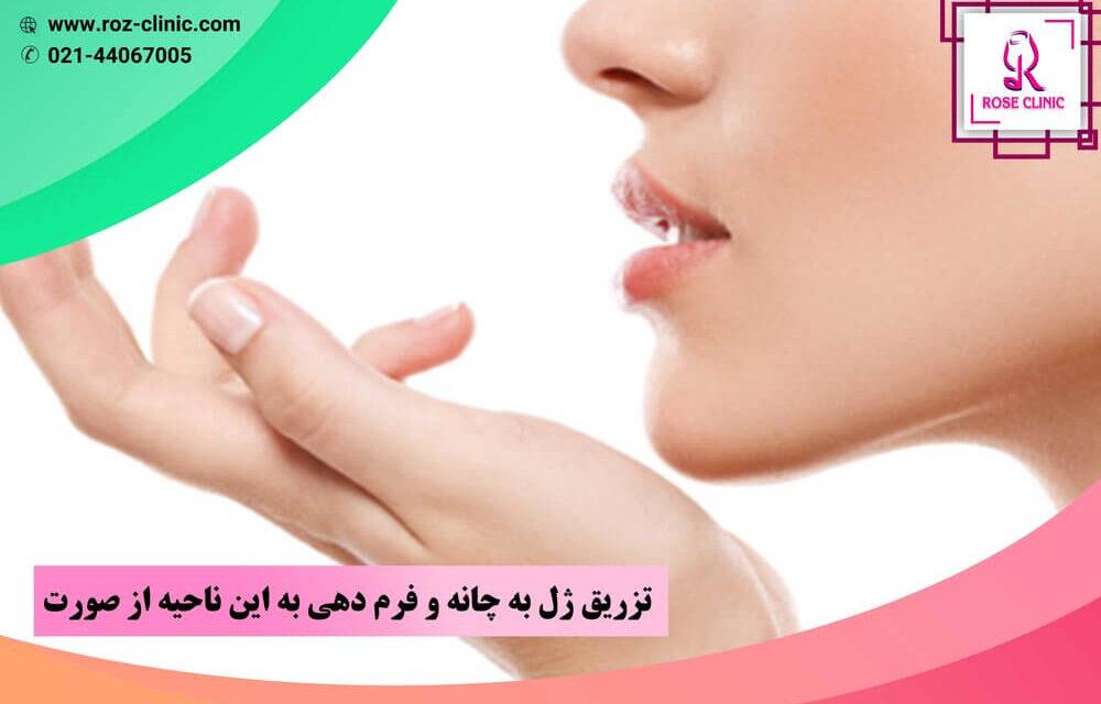 تزریق ژل به چانه و فرم دهی به این ناحیه از صورت