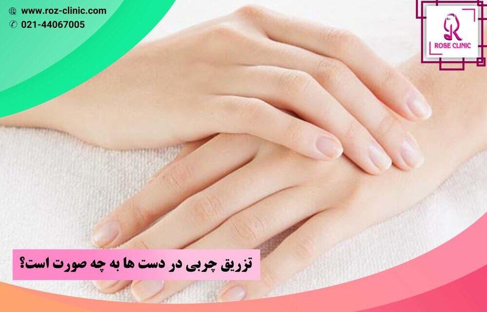 تزریق چربی در دستها به چه صورت است؟