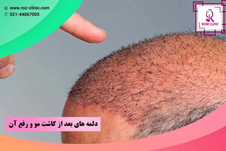 دلمه های بعد از کاشت مو و رفع آن