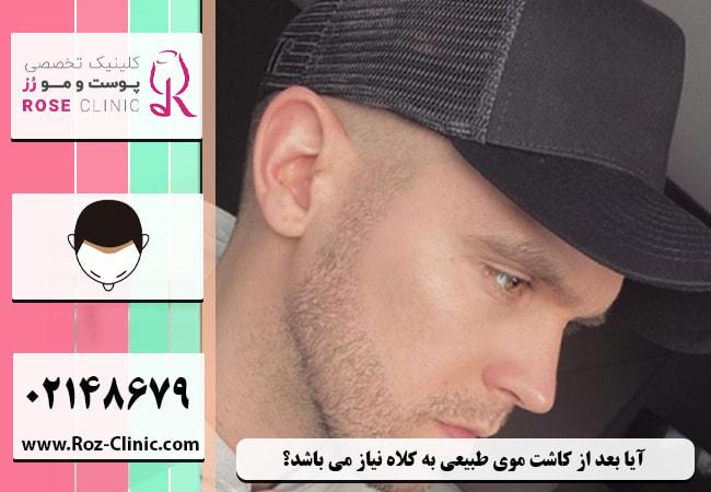 آیا بعد از کاشت موی طبیعی به کلاه نیاز می باشد؟