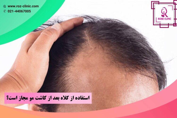 استفاده از کلاه بعد از کاشت مو مجاز است؟