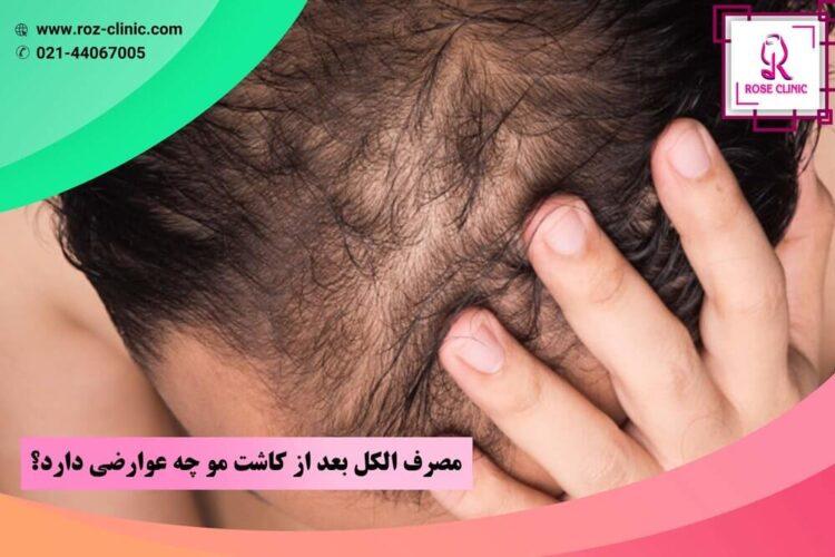 مصرف الکل بعد از کاشت مو چه عوارضی دارد؟
