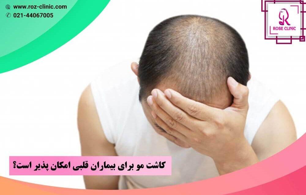 کاشت مو برای بیماران قلبی امکان پذیر است؟