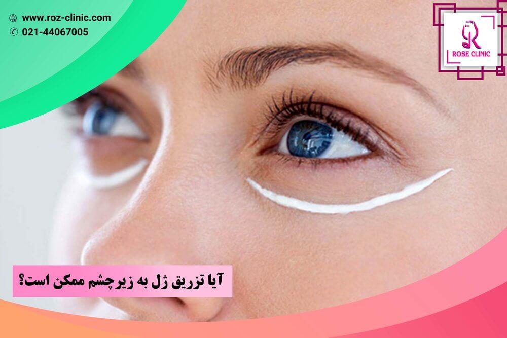 آیا تزریق ژل به زیر چشم ممکن است؟