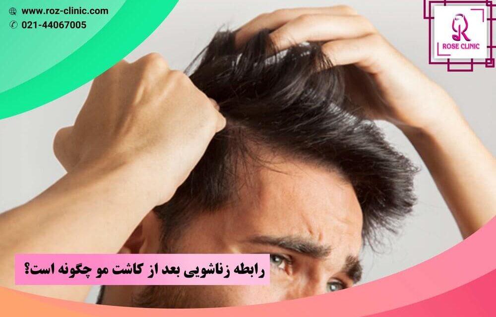 رابطه زناشویی بعد از کاشت مو چگونه است؟