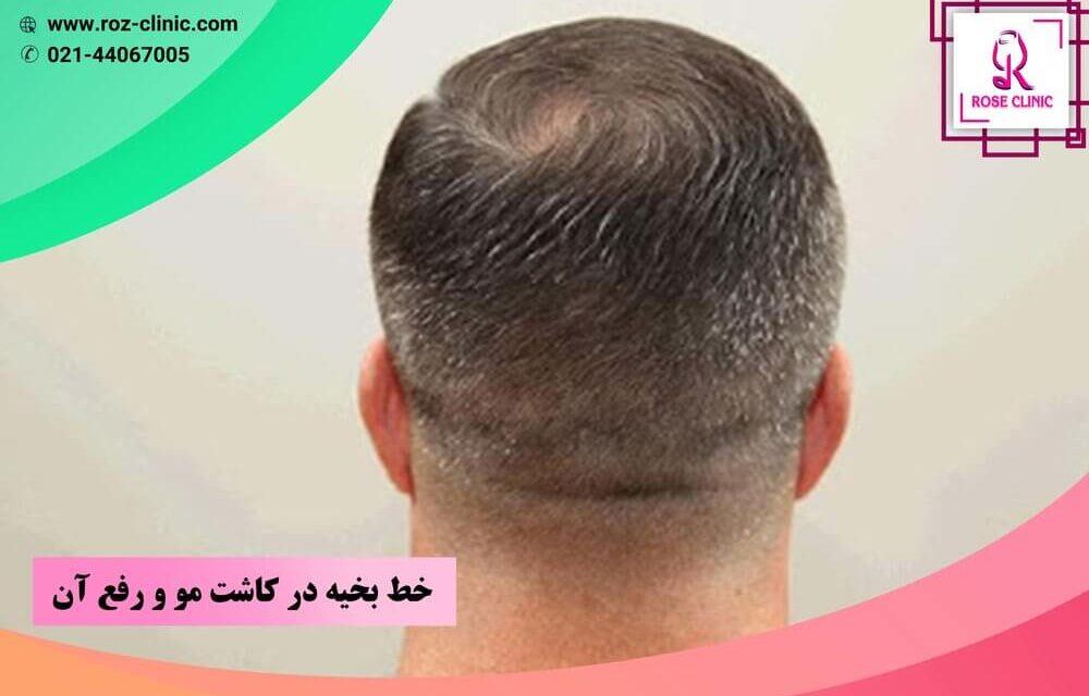 خط بخیه در کاشت مو و رفع آن