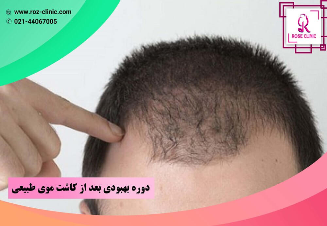دوره بهبودی بعد از کاشت موی طبیعی