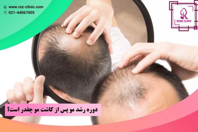 دوره رشد مو پس از کاشت مو چقدر است؟