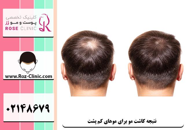 تاثیر و نتیجه ی ایده آل کاشت مو برای موهای کم پشت