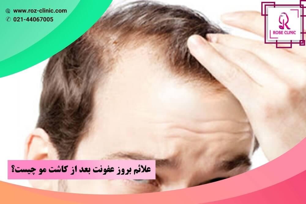 علائم بروز عفونت بعد از کاشت مو چیست؟