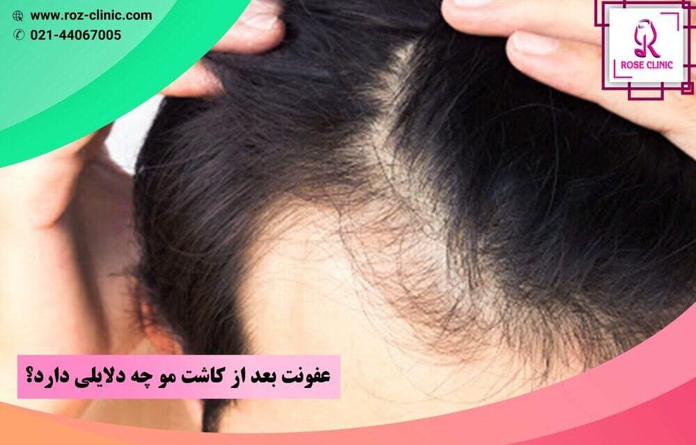 عفونت بعد از کاشت مو چه دلایلی دارد؟