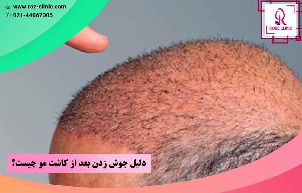 دلیل جوش زدن بعد از کاشت مو چیست؟