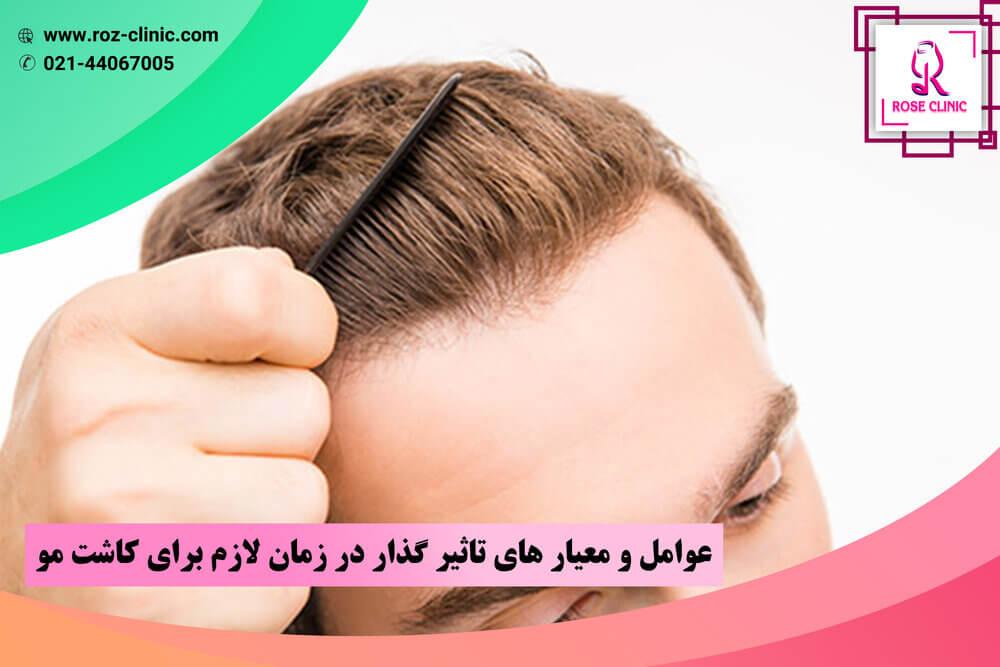 عوامل و معیار های تاثیر گذار در زمان لازم برای کاشت مو