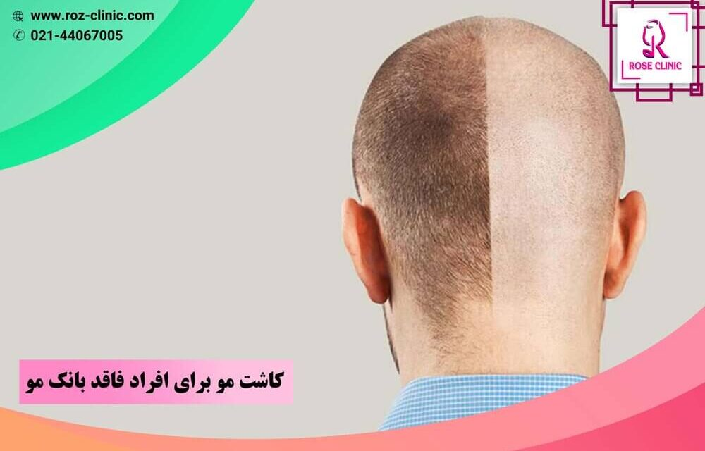 عمل کاشت مو بدون بانک مو