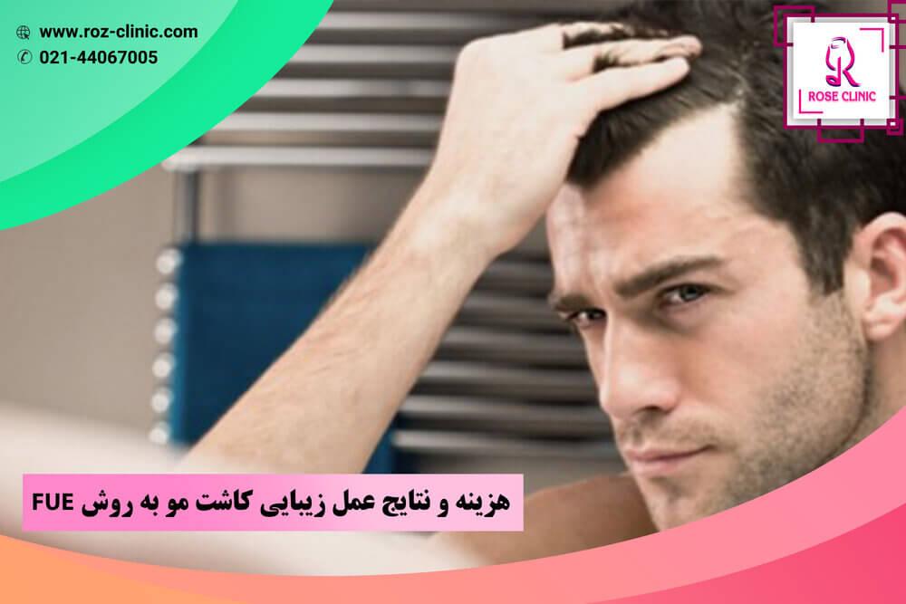 هزینه و نتایج عمل زیبایی کاشت مو به روش FUE