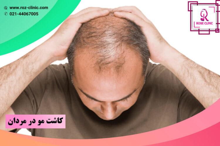 کاشت مو در مردان